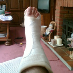 My foot in plaster